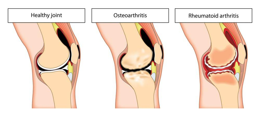 Stem Cells Therapy for Arthritis and Arthrosis: How it can