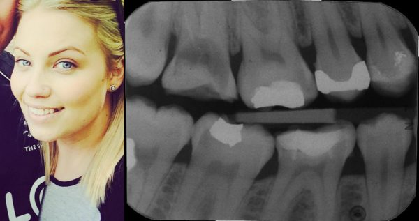Harriet Weyman suffered decay in two of her teeth